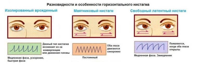 Нистагм глазного яблока: что это такое, причины возникновения, виды (горизонтальный, вертикальный и другие)
