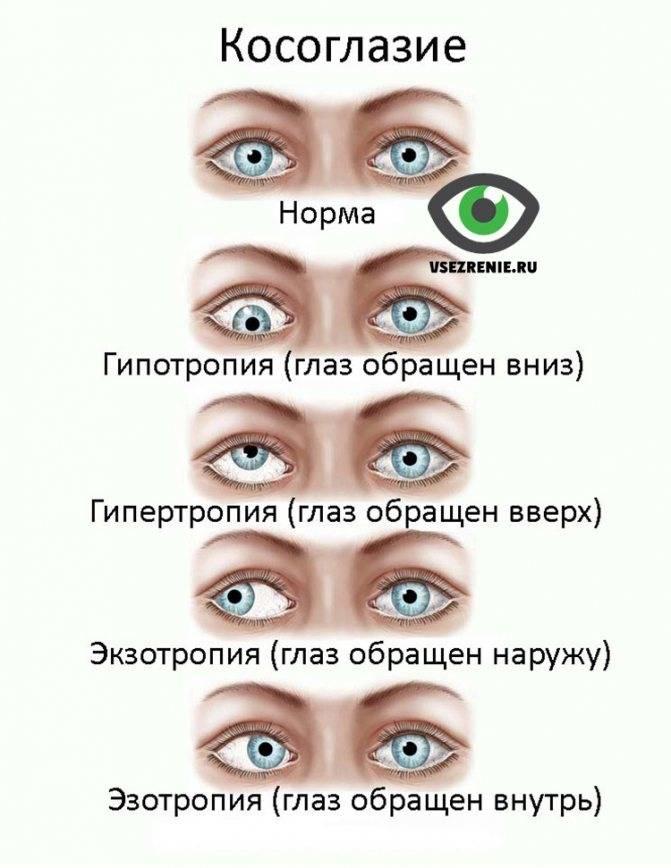 Как исправить косоглазие у подростка: упражнения и лечение в домашних условиях — глаза эксперт