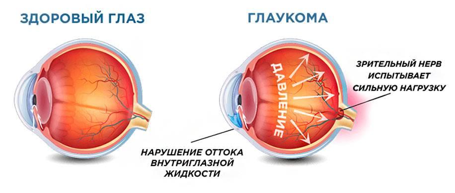 Можно ли при глаукоме работать на компьютере - вылечимглаукому