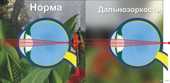 Гиперметропия (мкб-10 h52.0) лечение дальнозоркости