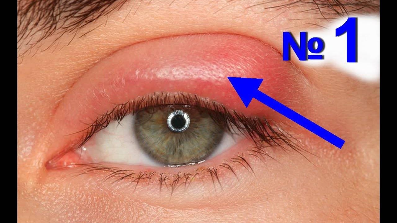 """Что делать, если ячмень на глазу долго не проходит? - """"здоровое око"""""""