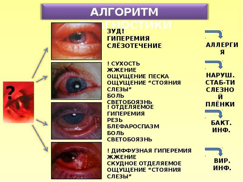Симптомы инфекционных болезней глаз