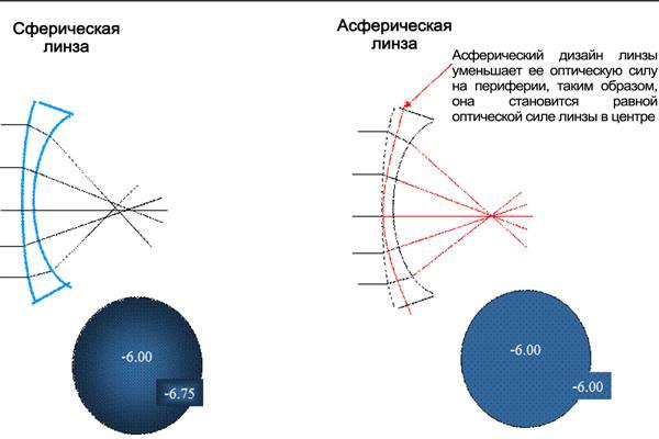 Асферические линзы: противопоказания, преимущества