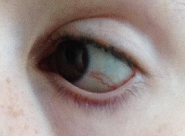 Болят глаза после сна по утрам: причины, симптомы, лечение, капли, народные средства
