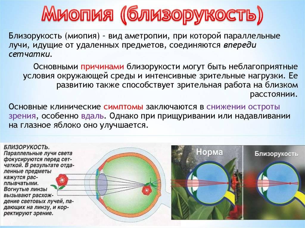 Монохромазия
