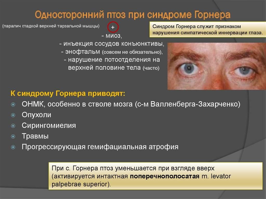 Синдром горнера: симптомы, причины, лечение, осложнения и профилактика