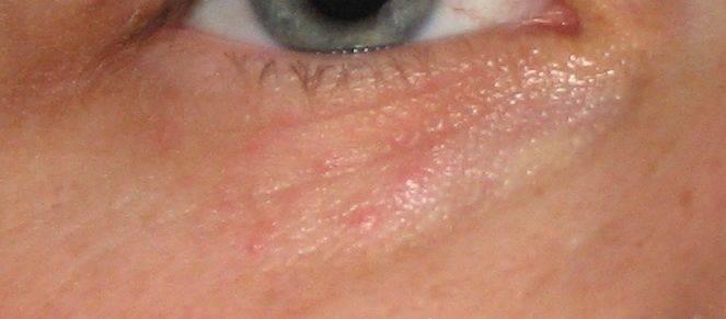 """Герпес на глазу: симптомы и способы лечения - """"здоровое око"""""""