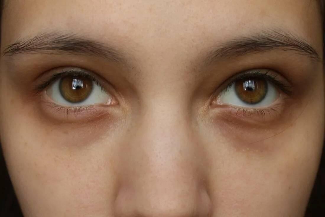Красные пятна под глазами. что это, причины