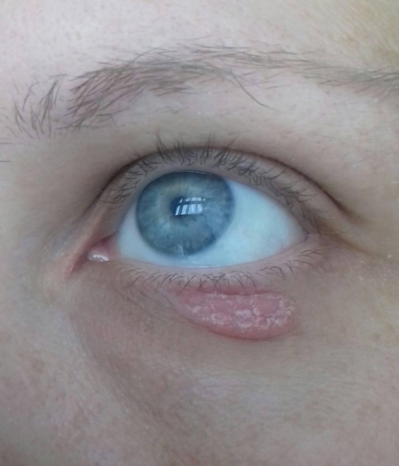 Лечение раздражения вокруг глаз