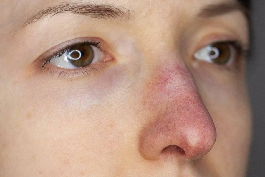 Синяки в уголках глаз у переносицы: причины