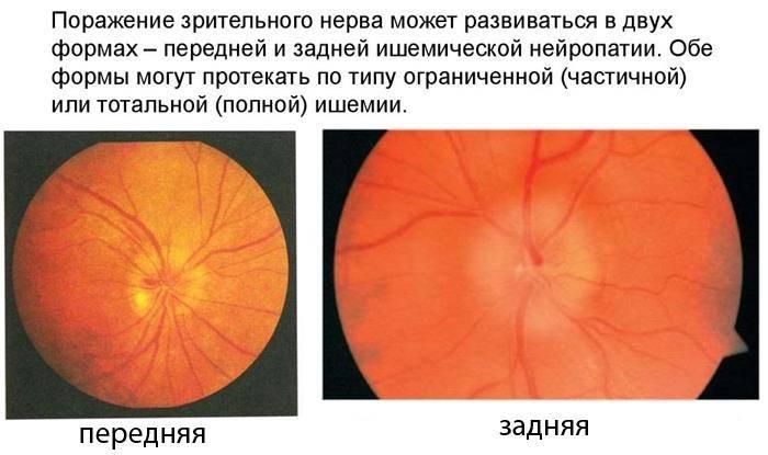 Развитие отёка зрительного нерва — информация, которую важно знать