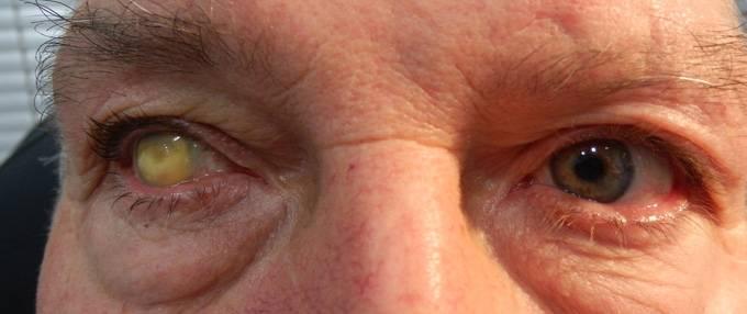 Причины и лечение бельма на глазу