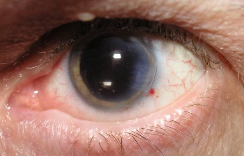 Важный, но непростой вопрос: удастся ли сохранить зрение при зрелой катаракте?