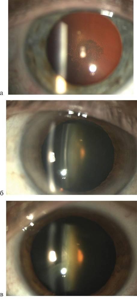 Как делают лазерную дисцизию при вторичной катаракте?