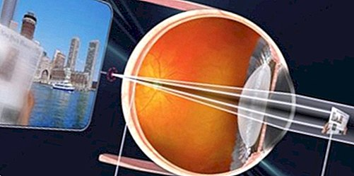 Что это такое пресбиопия глаз и как лечить: причины и симптомы патологии, методы диагностики и лечения