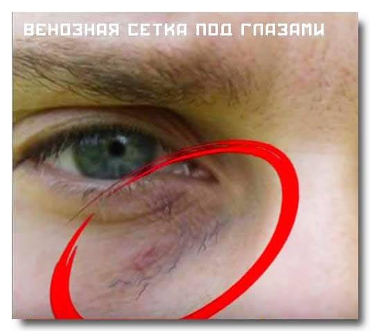 Лопнул сосуд под глазом что делать. лопнувший на лице сосуд: инструкция по устранению. акупунктура в укреплении сосудов - твой косметолог