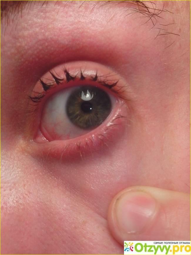 Спирт попал в глаза: что делать и что будет если нашатырный раствор попал на органы зрения взрослого и ребенка, первая помощь и последствия