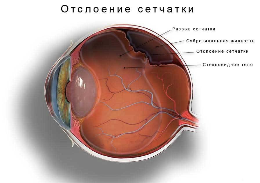 Как лечить отслоение сетчатки глаза полное и на начальной стадии - можно ли вылечить народными средствами и глазными каплями