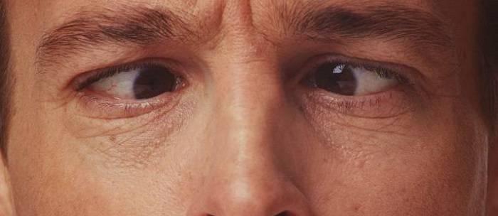 Офтальмоплегия, диагностика и лечение