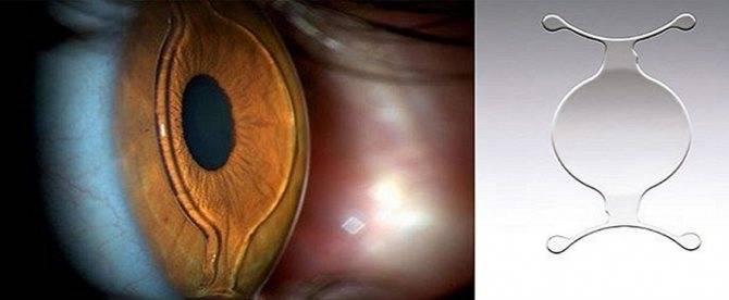 Что такое факичные линзы для глаз: за и против их использования oculistic.ru что такое факичные линзы для глаз: за и против их использования