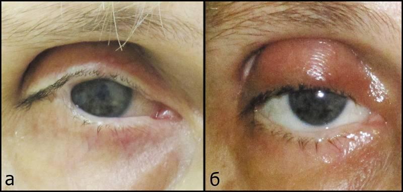 Лагофтальм глаза: причины, симптомы, лечение - я здоров