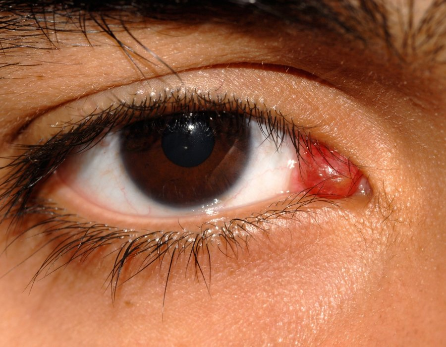 Дакриоаденит: фото, диагностика и лечение воспаления слезной железы