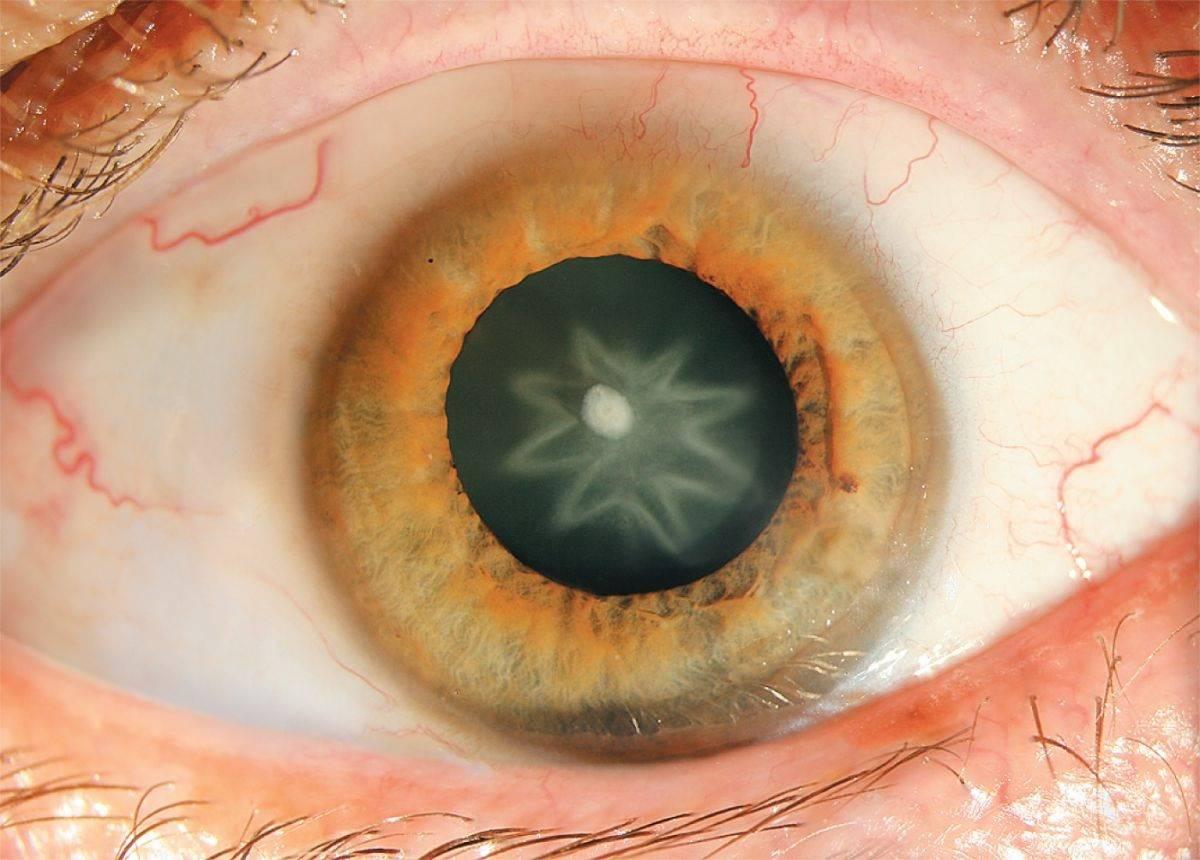 Причины и лечение помутнения хрусталика глаза — основного признака катаракты