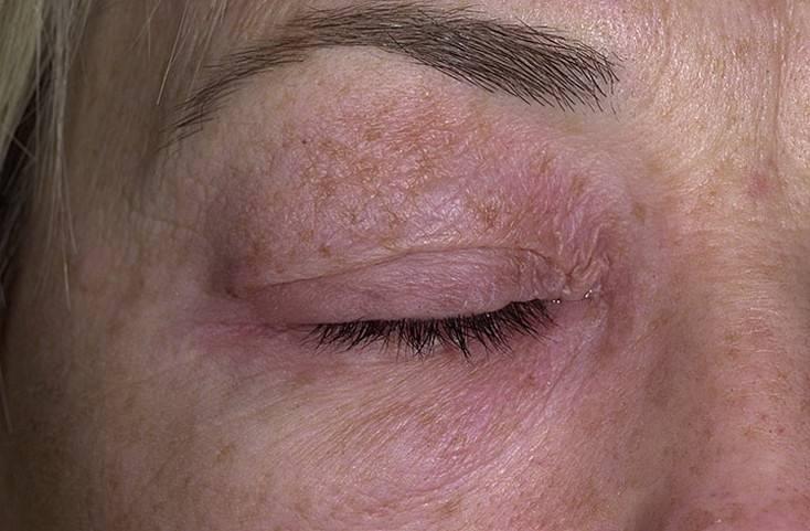 Дерматит на веках глаз: лечение и причины возникновения