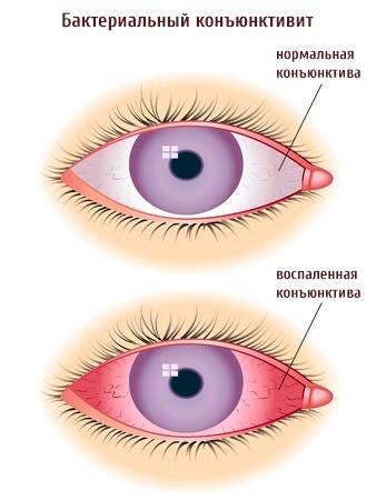 Как начинается конъюнктивит у детей – первые симптомы, диагностика, лечение — глаза эксперт