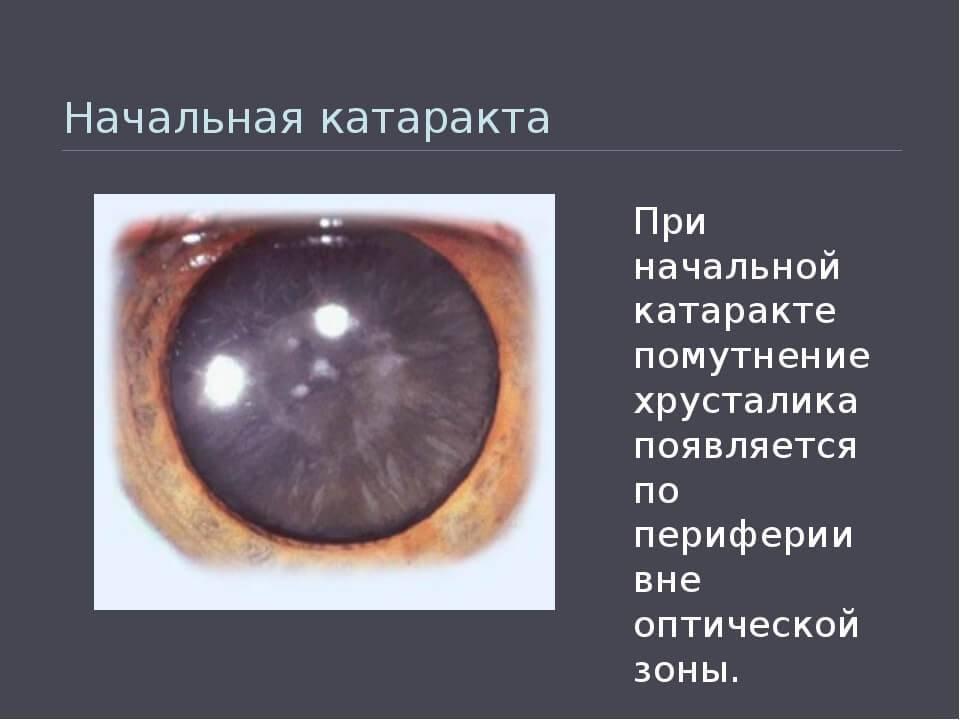 """Начальная стадия катаракты: как лечить - """"здоровое око"""""""