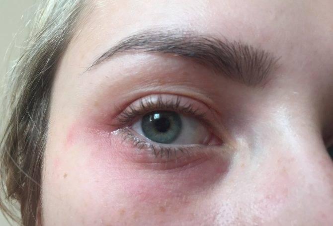 Покраснение вокруг глаз – причины и лечение