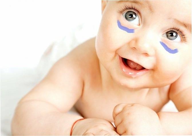 Синяки и мешки под глазами у новорожденного: проблема ли?