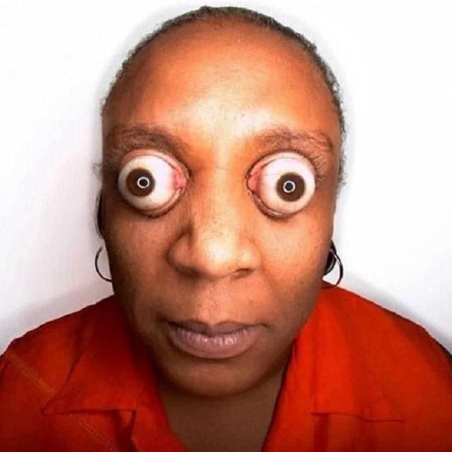 Лечиться ли болезнь выпученных глаз?