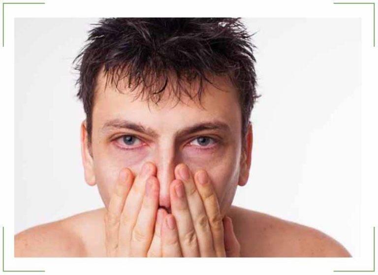 Темные круги под глазами причины у мужчин причины и лечение