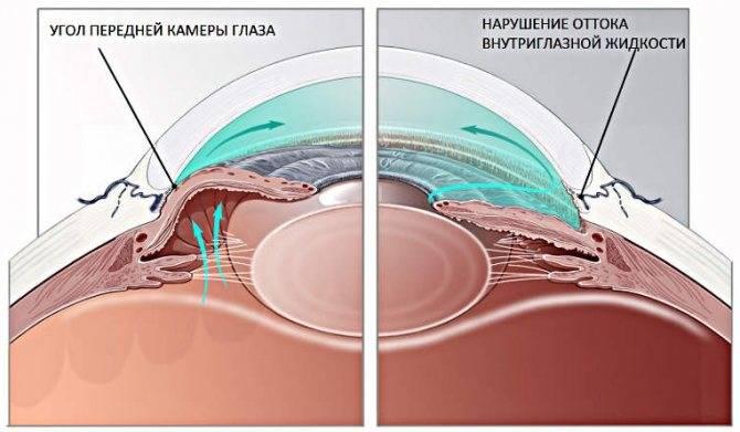Показания и осложнения лазерной иридэктомии