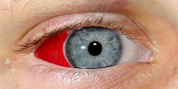 Кровоизлияние в глазу: что делать, какие капли капать