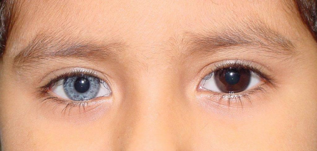 Гетерохромия глаз: причины появления и лечение