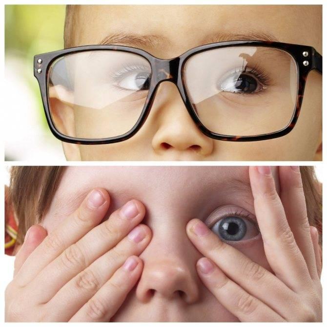 Почему же щурится малыш? гиперметропический астигматизм у детей, его характерные симптомы