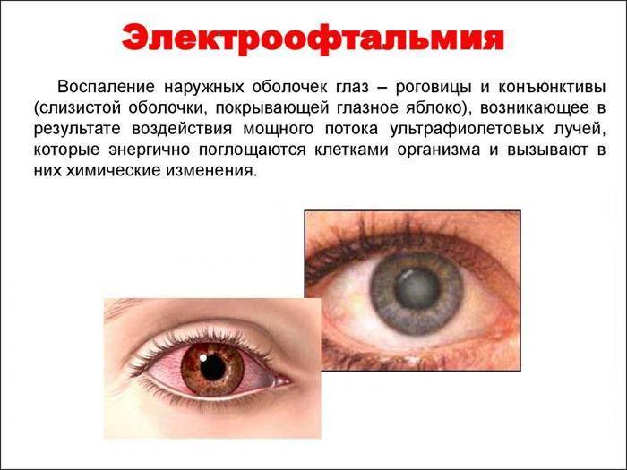 Ожог роговицы глаза: какие последствия могут быть?