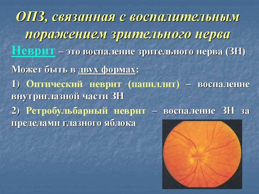 Что такое центральная хориоретинальная дистрофия сетчатки глаза и как она влияет на глаз? — глаза эксперт