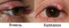 Главные отличия ячменя от халязиона: в чем разница