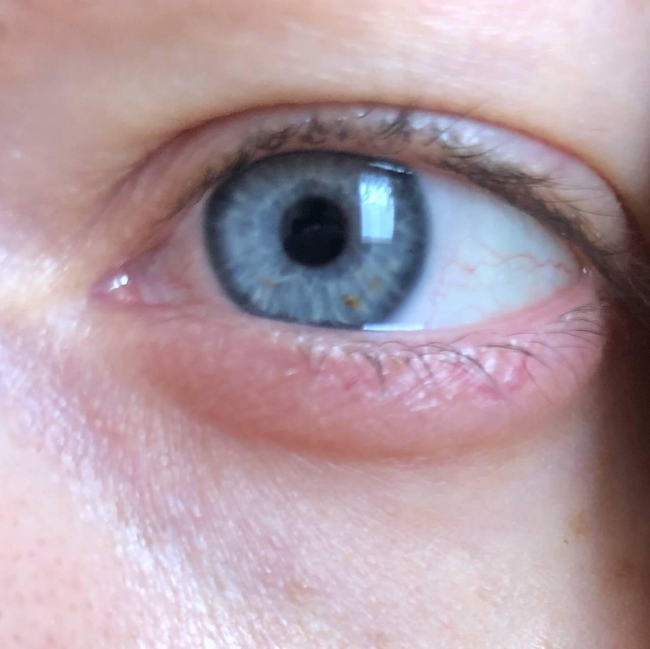 Радужка глаза: цвет, пятна, болезни