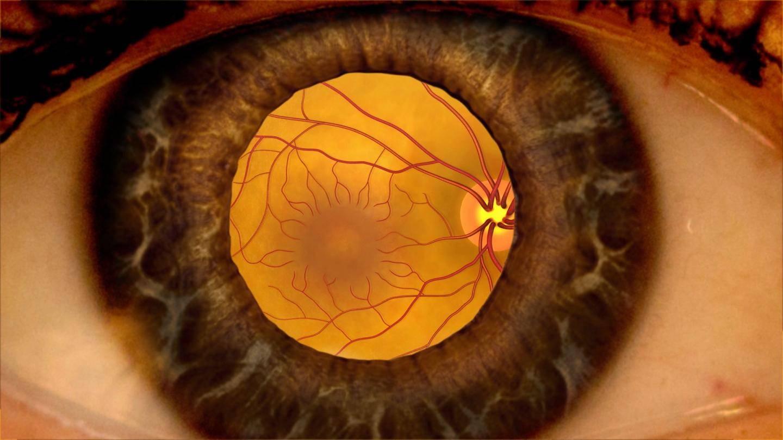 Дистрофия сетчатки глаза - что это такое... симптомы, лечение и последствия - sammedic.ru