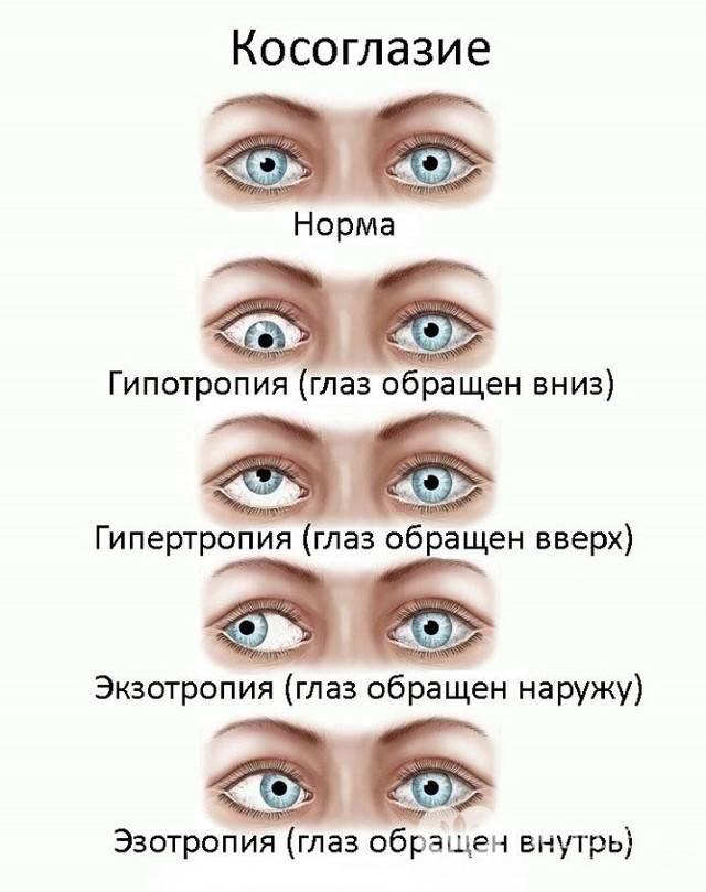 Закатывание глаз лечение у взрослого