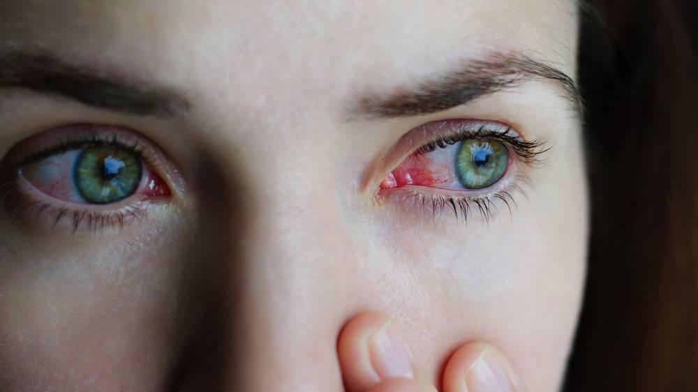 Капли от слезоточивости глаз - список лучших