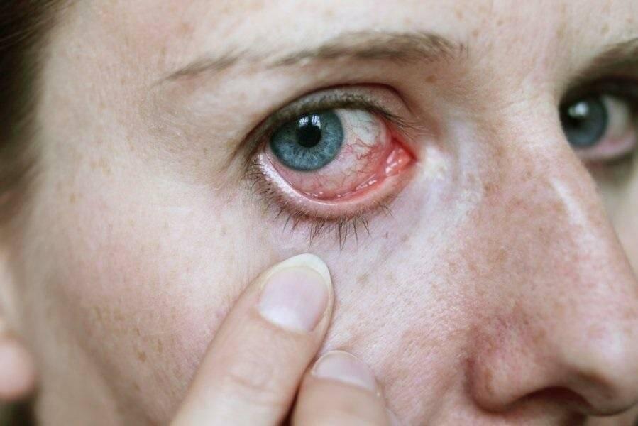 Почему глаза могут приобрести стеклянный вид