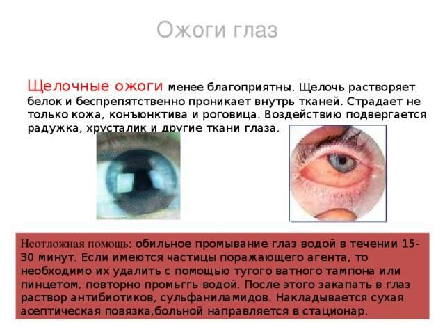 Ожог глаз сваркой: первая помощь, капли и народная медицина