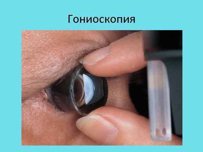Что такое гониоскопия глаза и как её проводят oculistic.ru что такое гониоскопия глаза и как её проводят