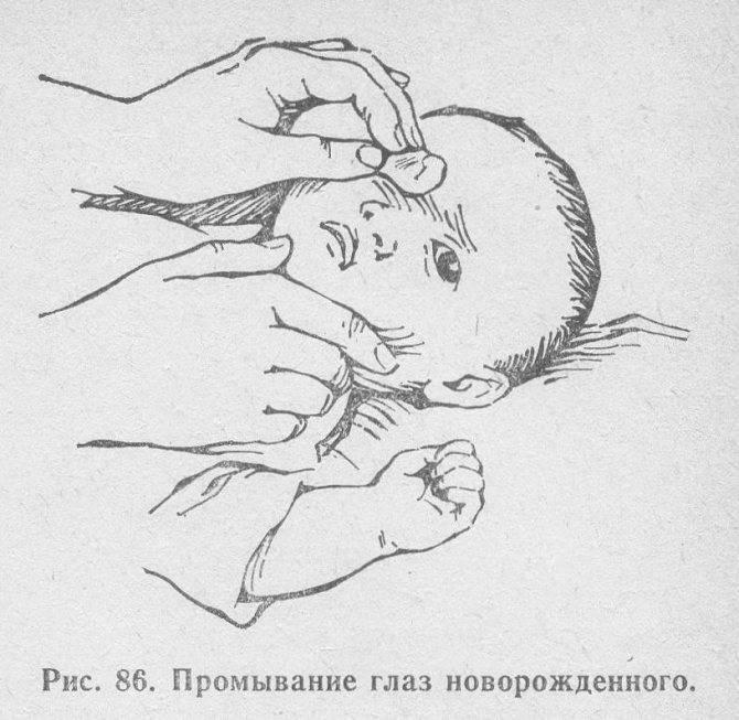 Что делать, если у новорожденного ребенка гноятся и слезятся глаза: чем промыть, капли