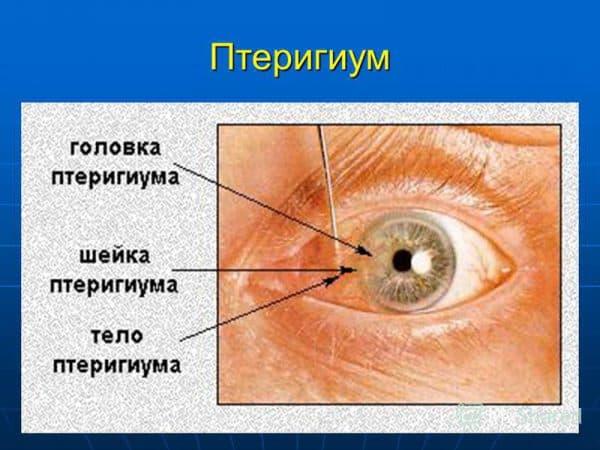 """Птеригиум глаза и его эффективное лечение (капли и операция по удалению) - moscoweyes.ru - сайт офтальмологического центра """"мгк-диагностик"""""""
